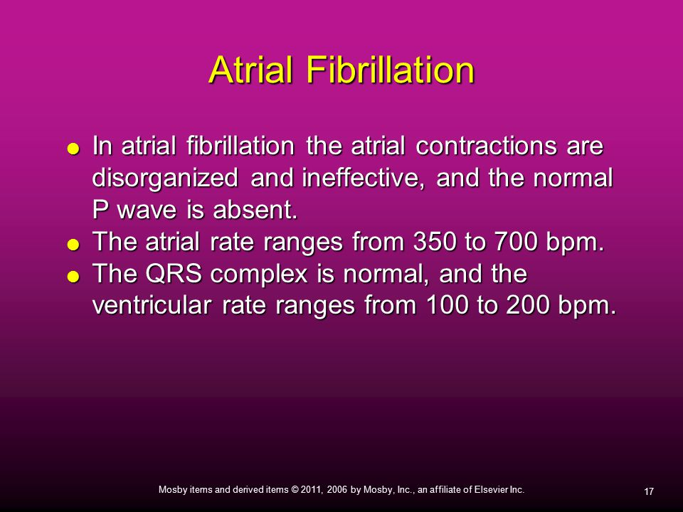 Atrial Fibrillation In atrial fibrillation the atrial contractions are disorganized and ineffective, and the normal P wave is absent.