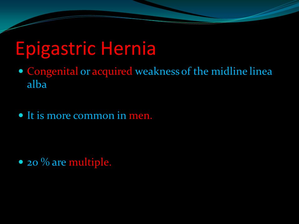 Epigastric Hernia Congenital or acquired weakness of the midline linea alba. It is more common in men.
