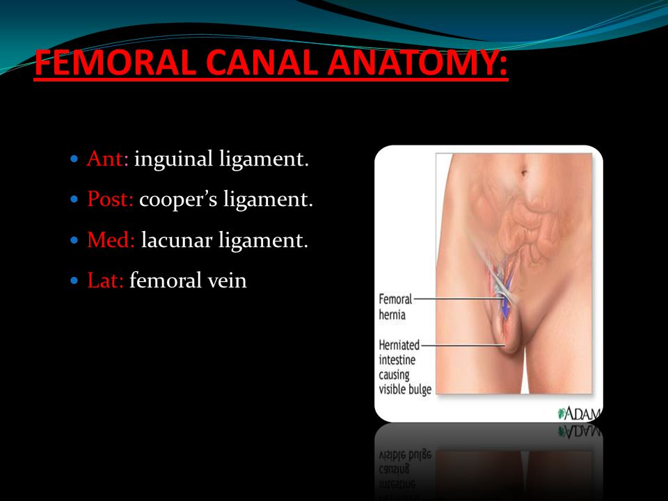 FEMORAL canal anatomy: