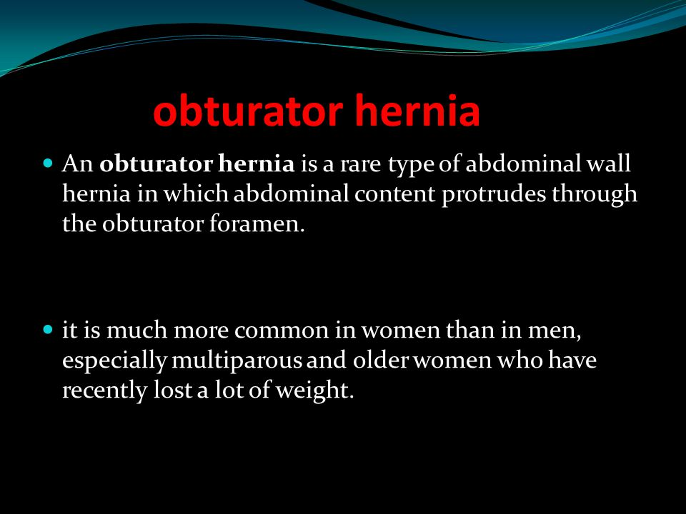 obturator hernia An obturator hernia is a rare type of abdominal wall hernia in which abdominal content protrudes through the obturator foramen.