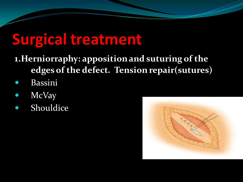 Surgical treatment 1.Herniorraphy: apposition and suturing of the edges of the defect. Tension repair(sutures)