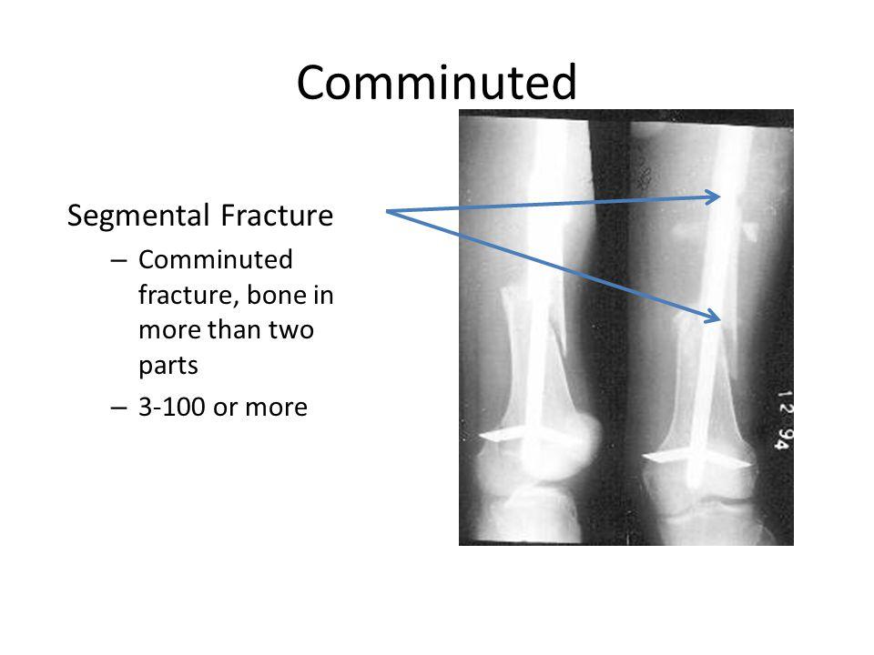 Bone Fracture Patterns Bone Healing Fracture Management Ppt Video