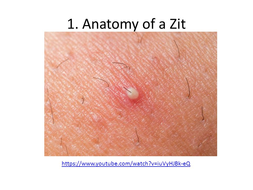 Acne. - ppt video online download