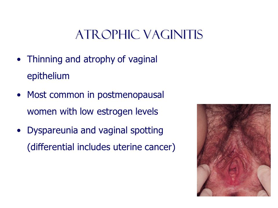 Atrophic vaginitis Thinning and atrophy of vaginal epithelium