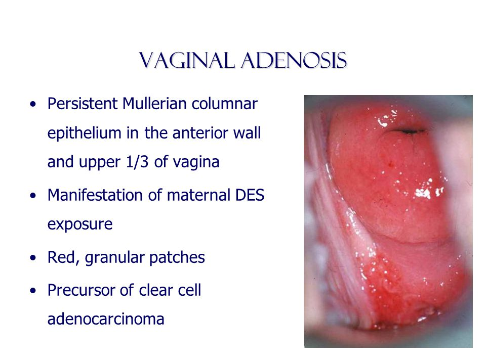 Vaginal Adenosis Persistent Mullerian columnar epithelium in the anterior wall and upper 1/3 of vagina.