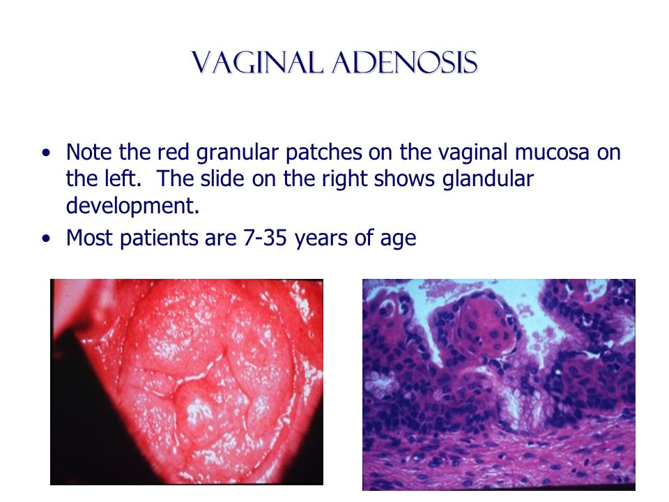 Vaginal Adenosis Note the red granular patches on the vaginal mucosa on the left. The slide on the right shows glandular development.