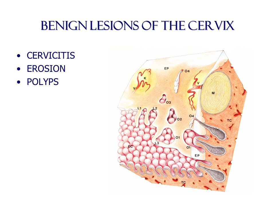 BENIGN LESIONS OF THE cervix