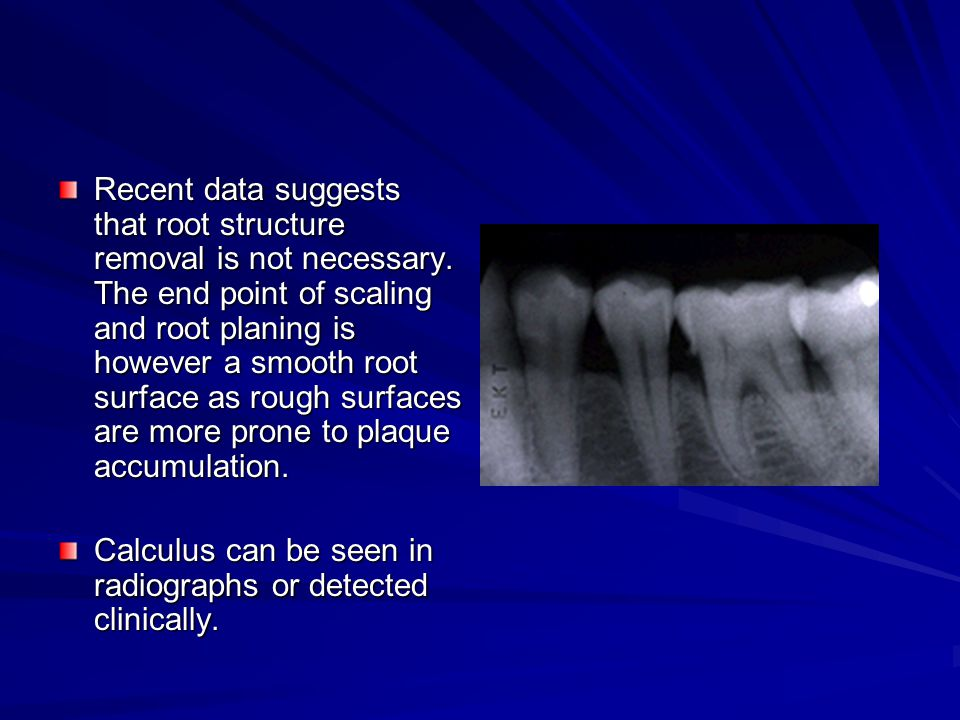 Recent data suggests that root structure removal is not necessary