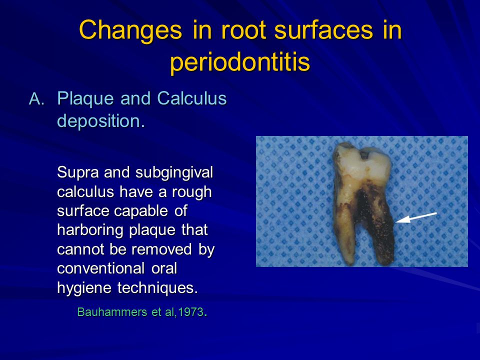 Changes in root surfaces in periodontitis