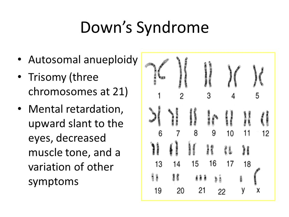 is down syndrome autosomal or sexlinked