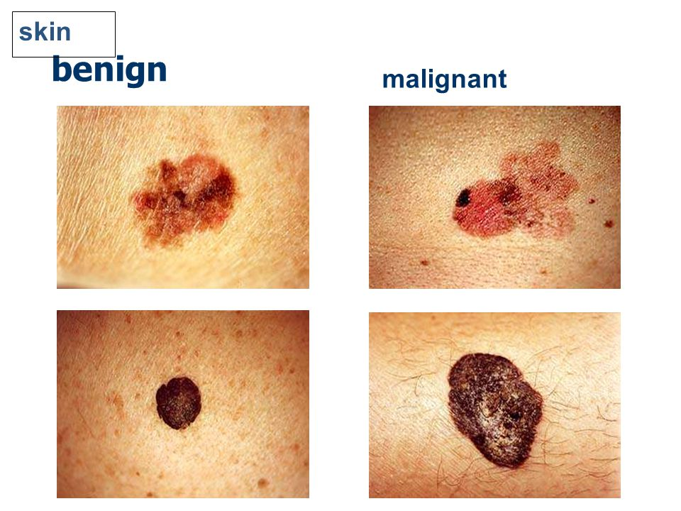 Melanoma And Skin Cancers Vs Image Processing Ppt Download
