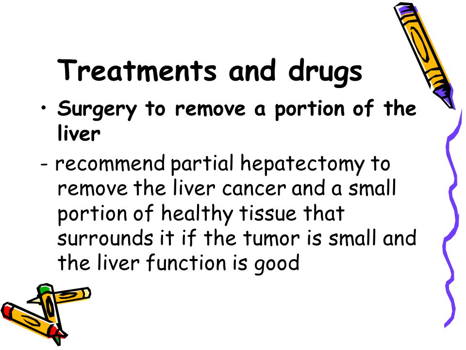Treatments and drugs Surgery to remove a portion of the liver