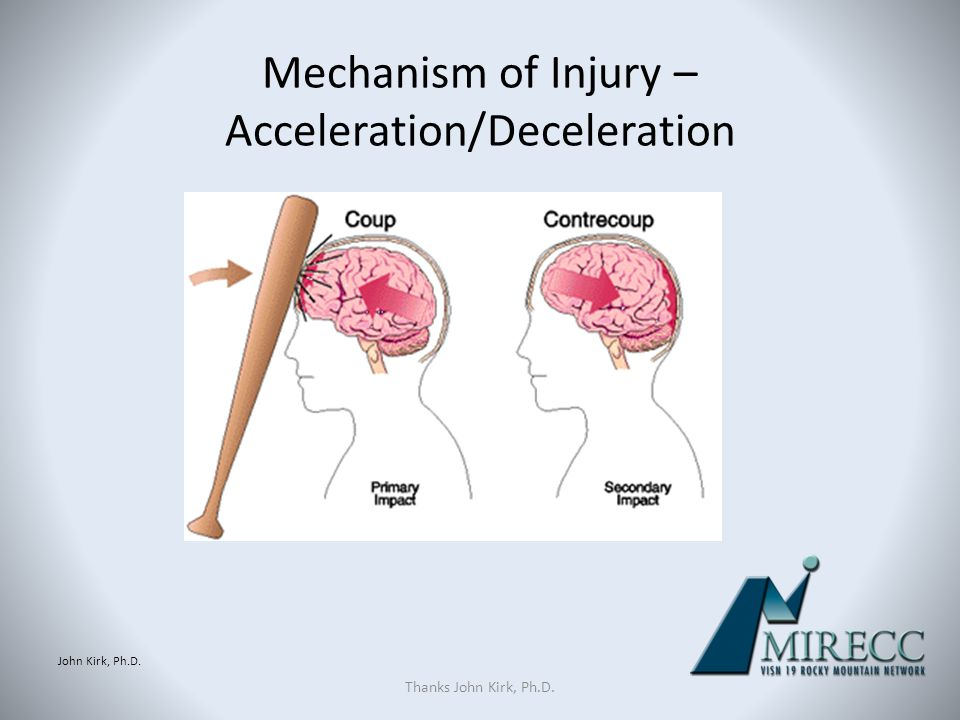 Mechanism of Injury – Acceleration/Deceleration
