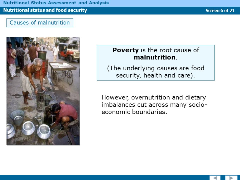 Poverty is the root cause of malnutrition.