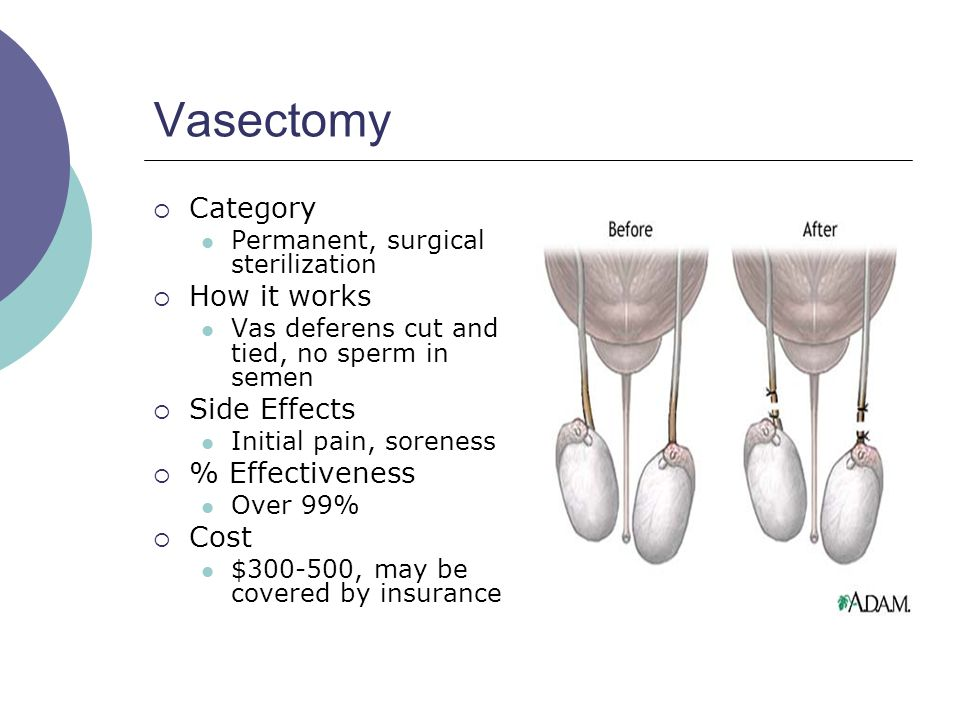 Vasectomy Category How it works Side Effects % Effectiveness Cost