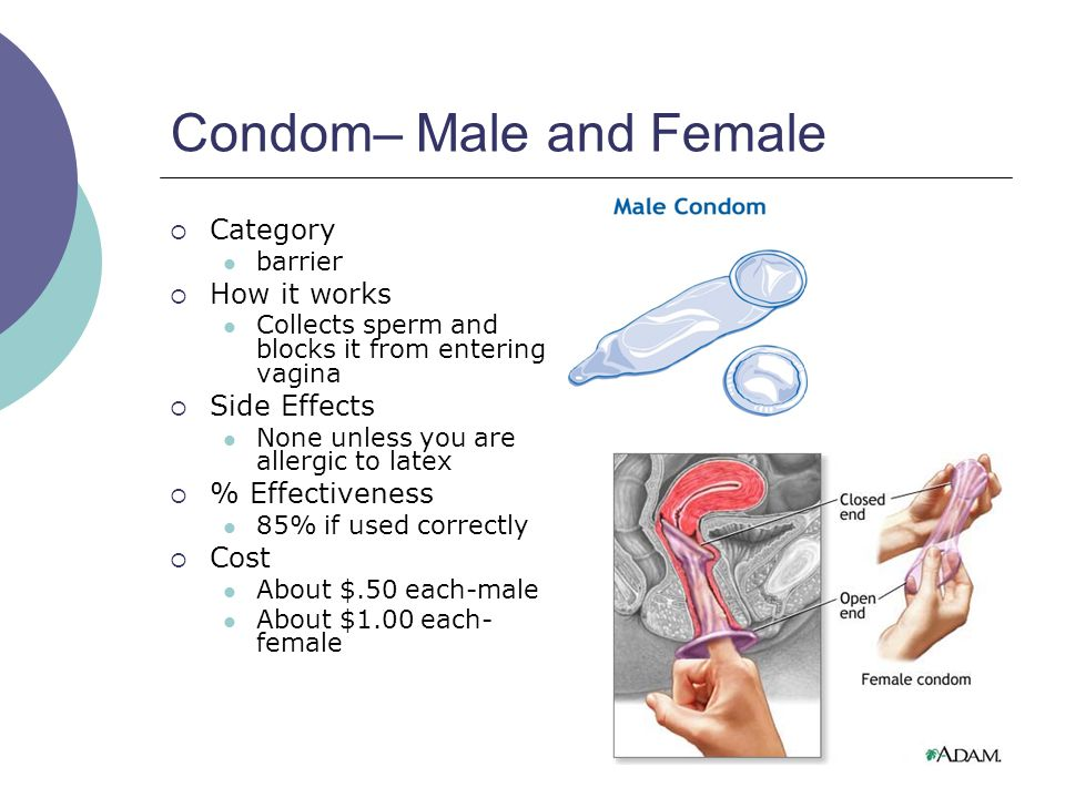 Condom– Male and Female