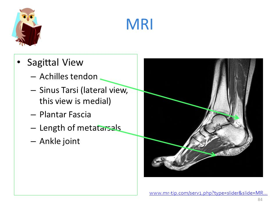 Musculoskeletal Diseases and Disorders: Ankle and Foot - ppt download