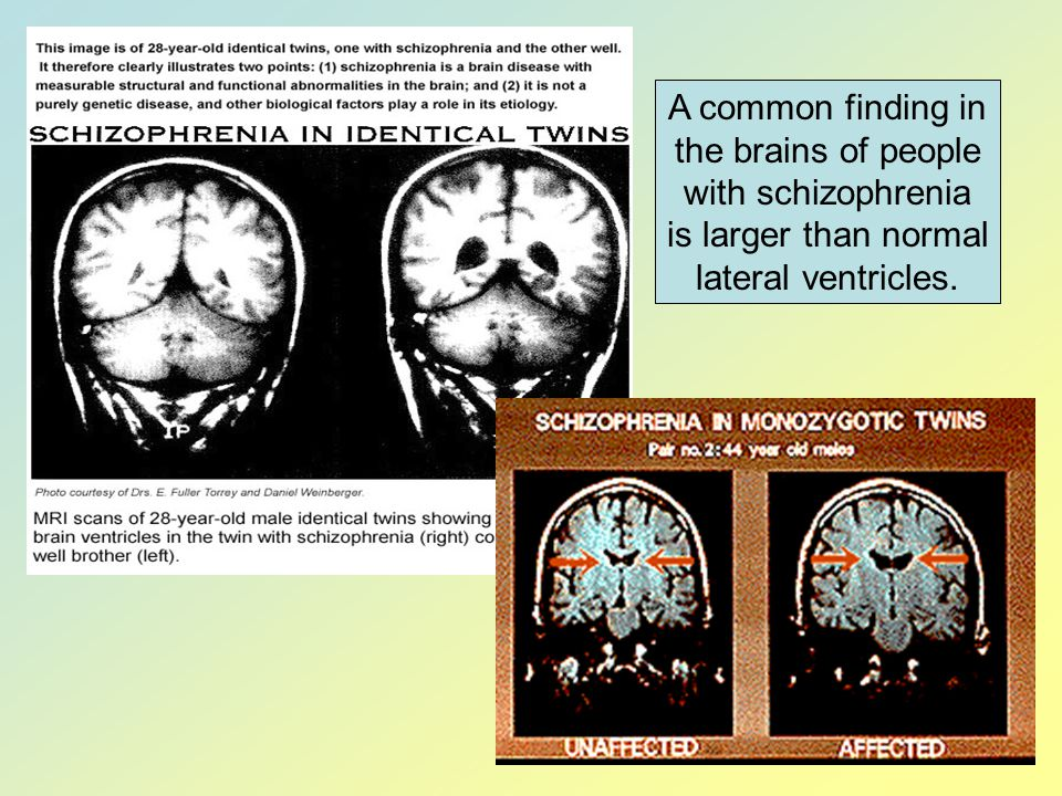 A common finding in the brains of people with schizophrenia is larger than normal lateral ventricles.