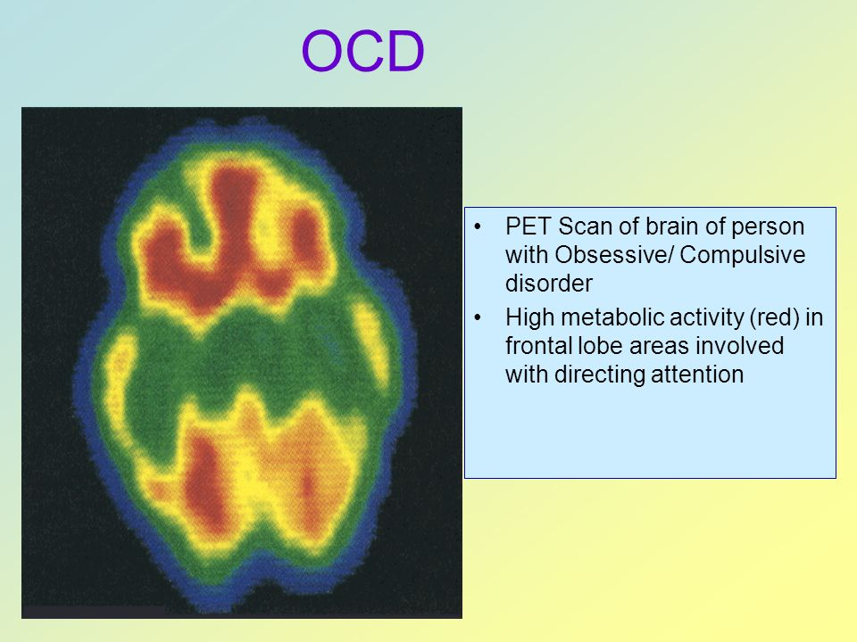 OCD PET Scan of brain of person with Obsessive/ Compulsive disorder
