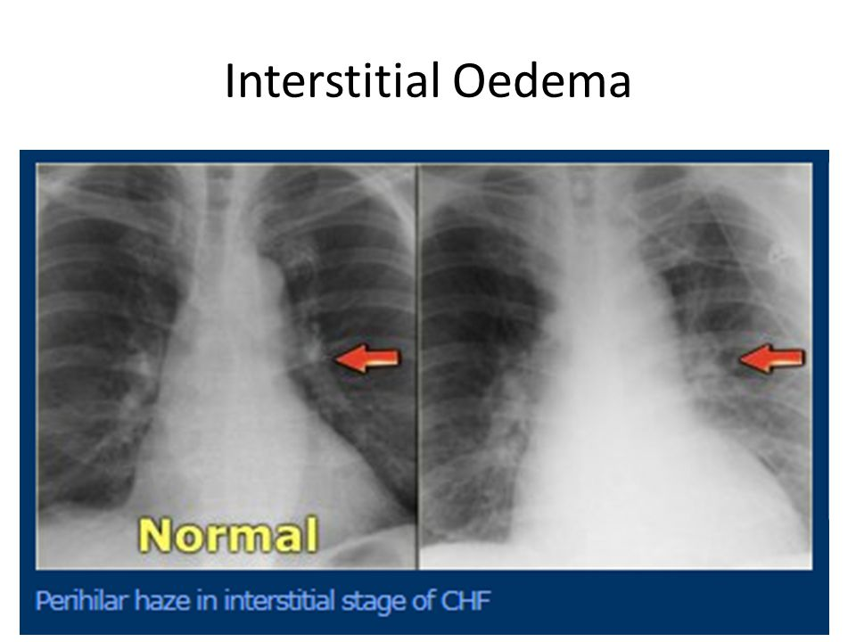 Chest X – Ray : Heart Failure - ppt video online download