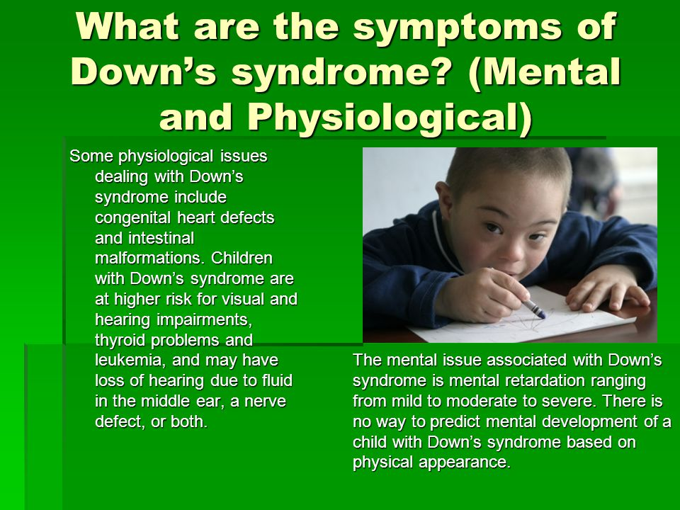 Trisomy 21 (Down's syndrome) - ppt video online download