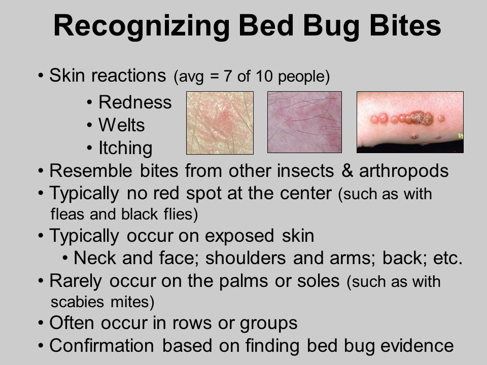 Bed Bug Detection And Management In Schools Dr Ppt Video Online