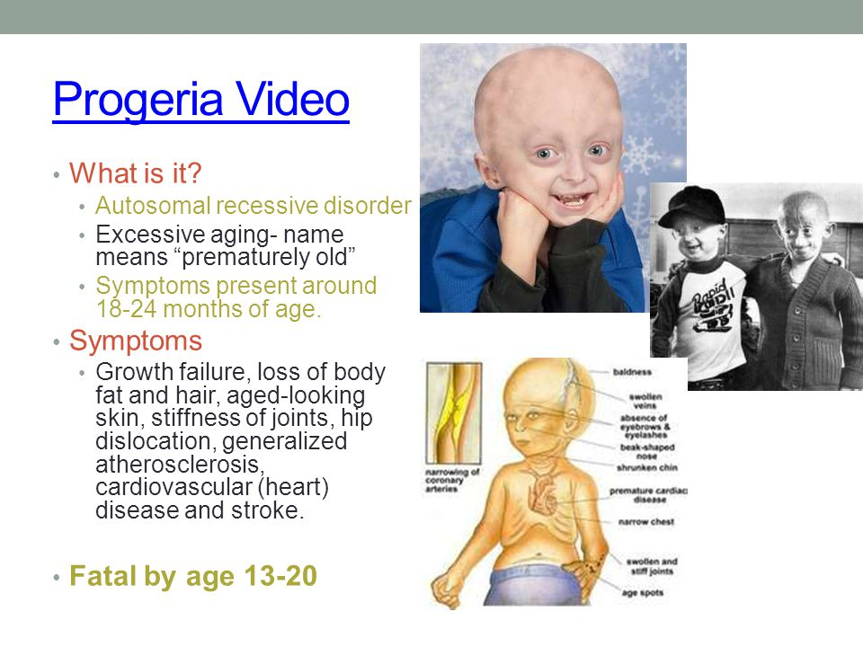 Progeria Video What is it Symptoms Fatal by age 13-20
