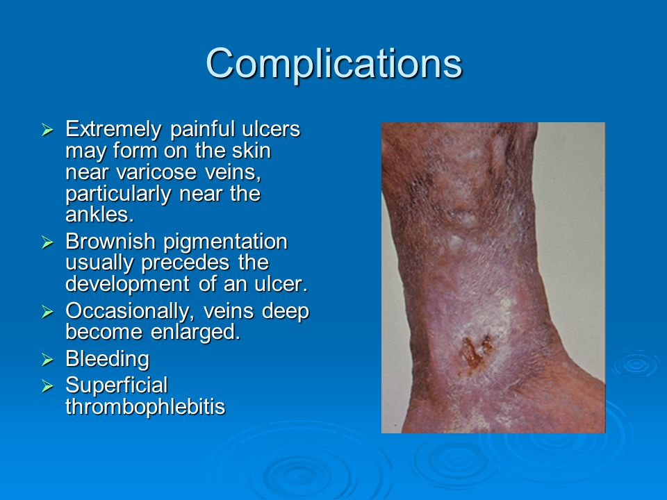 varicose vein surgery complications