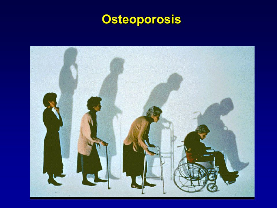 Osteoporosis This increases our understanding of the time-course for vertebral fractures.