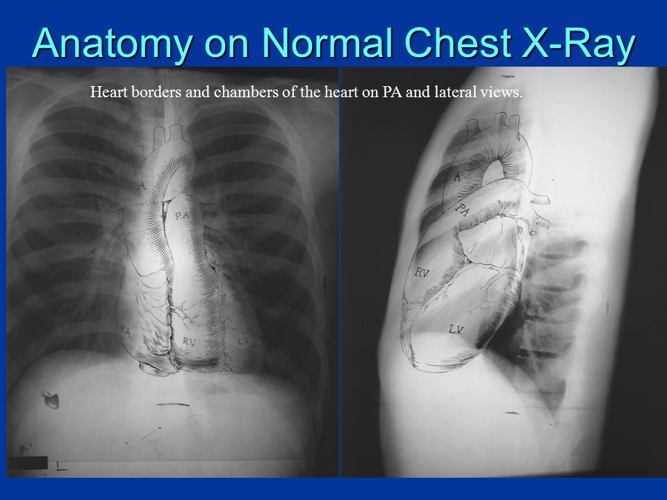 Radiologic Investigation Of Chest And Cvs Diseases Ppt Video