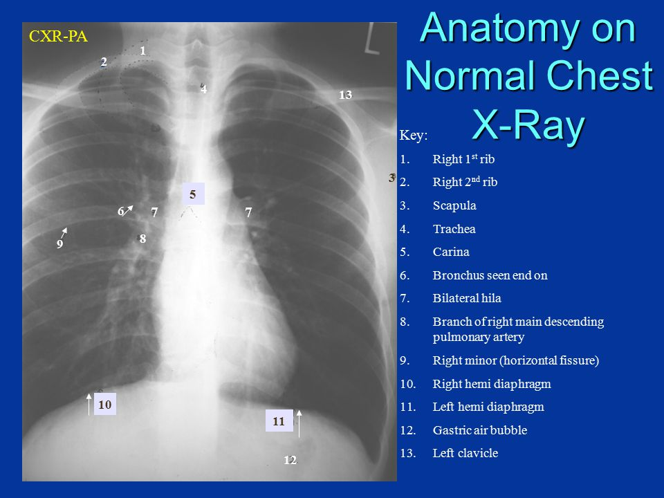 Radiologic investigation of Chest and CVS diseases - ppt video ...