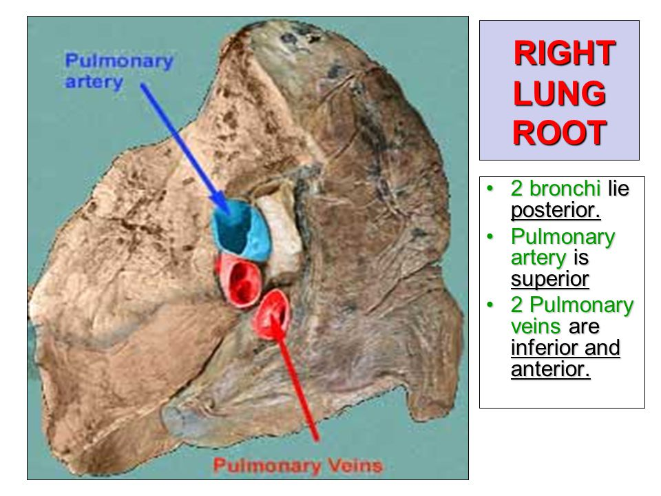 RIGHT LUNG ROOT 2 bronchi lie posterior. Pulmonary artery is superior
