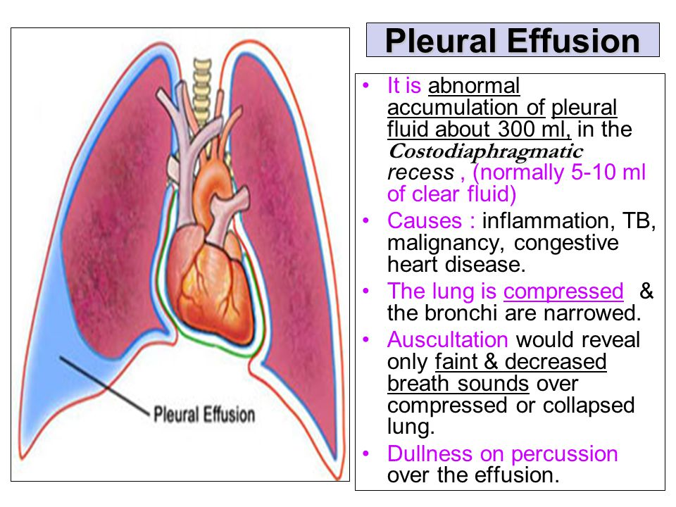 Pleural Effusion It is abnormal accumulation of pleural fluid about 300 ml, in the Costodiaphragmatic recess , (normally 5-10 ml of clear fluid)