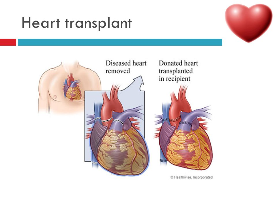 Paediatric cardiac disorders ppt download 65 heart transplant ccuart Choice Image