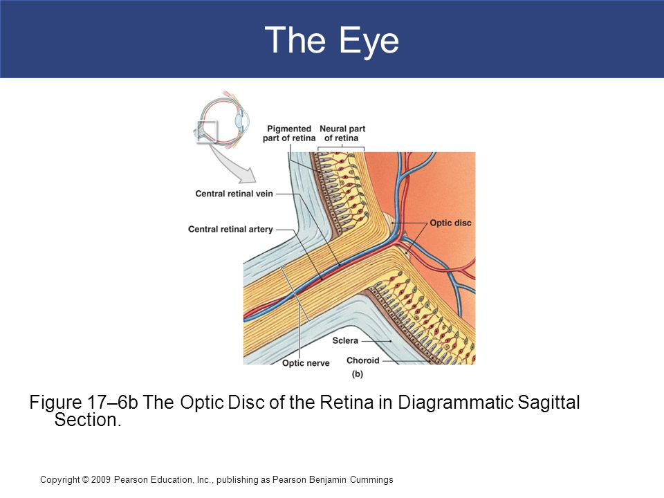 The Eye Figure 17–6b The Optic Disc of the Retina in Diagrammatic Sagittal Section.