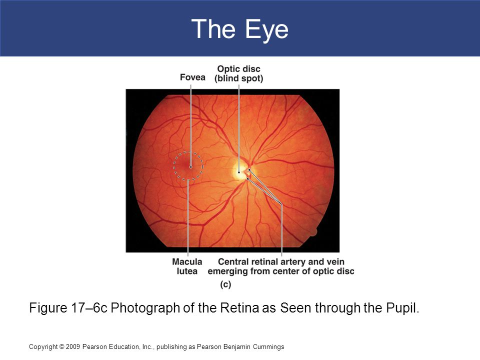 The Eye Figure 17–6c Photograph of the Retina as Seen through the Pupil.