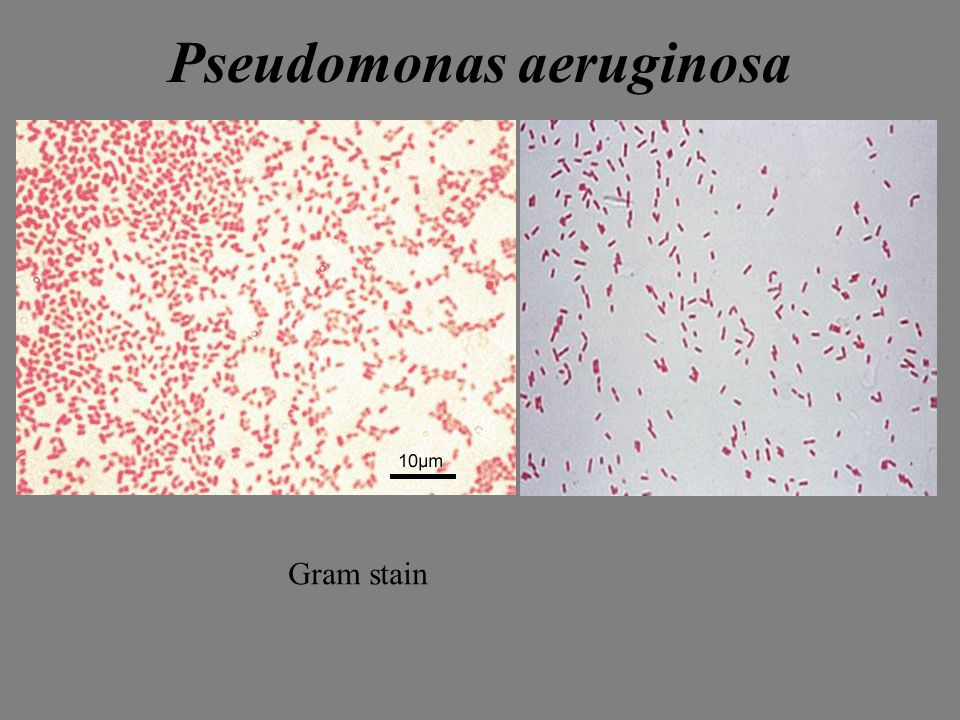 Gram Stains of Bacteria - ppt video online download