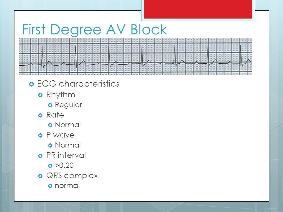 sinus rhythm with first degree av block
