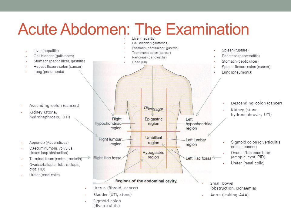 Acute Abdomen A The Examination