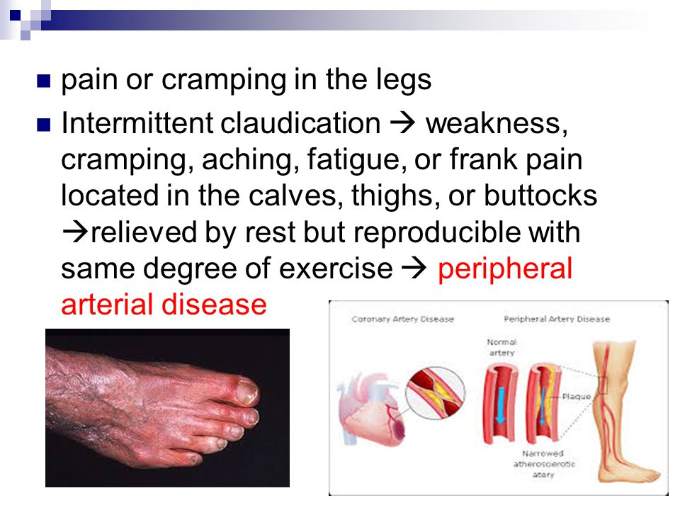 Peripheral Vascular And Lymphatic Assessment Ppt Video