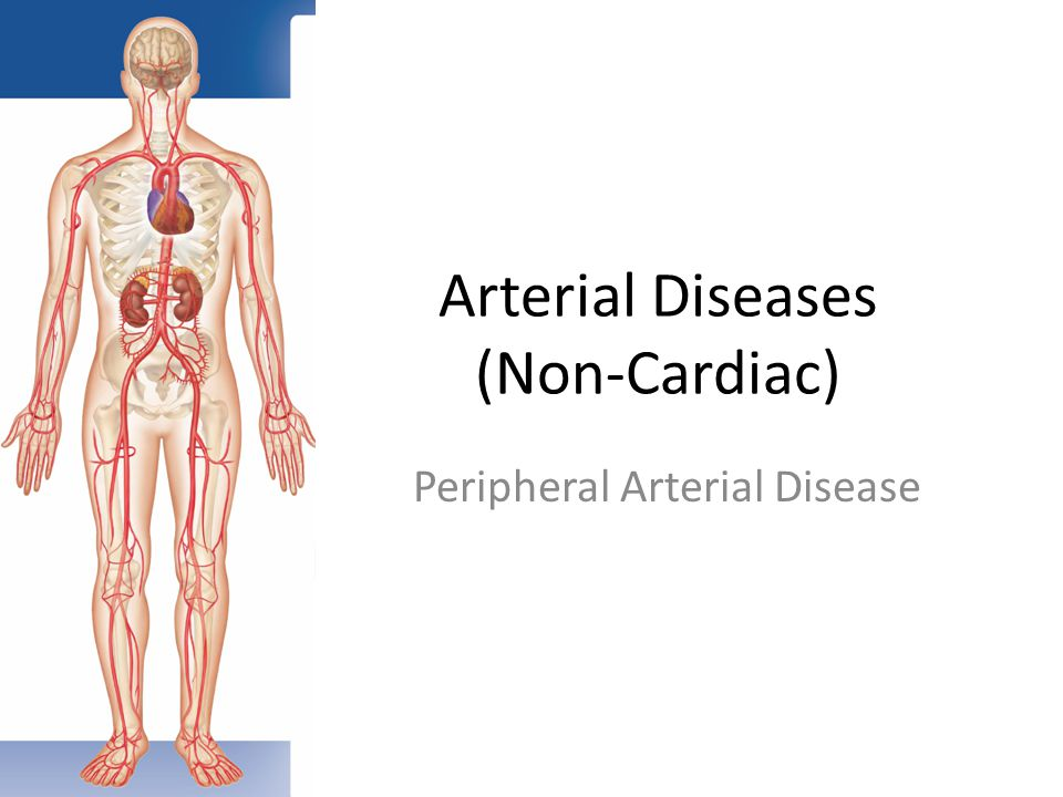 Disorders of the Peripheral Vascular System - ppt video online download