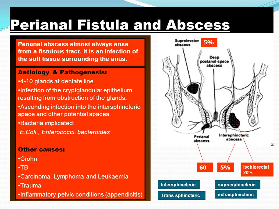 Cause of anal abscess