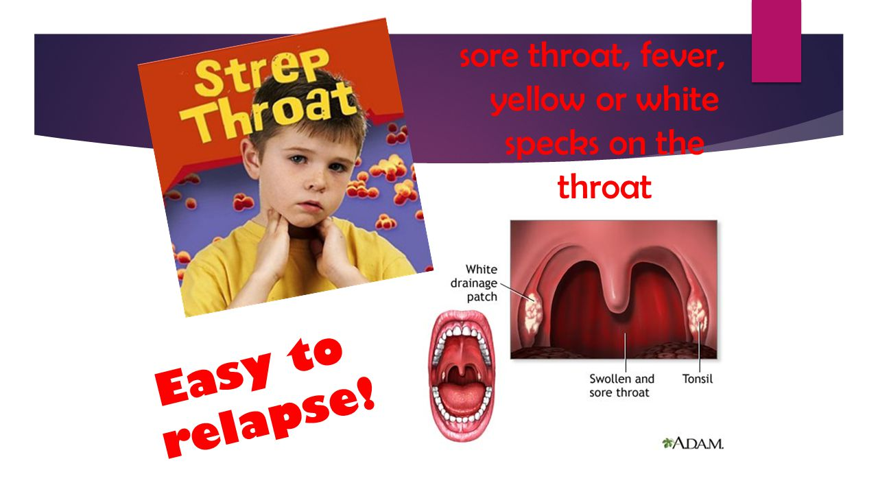 sore throat, fever, yellow or white specks on the throat