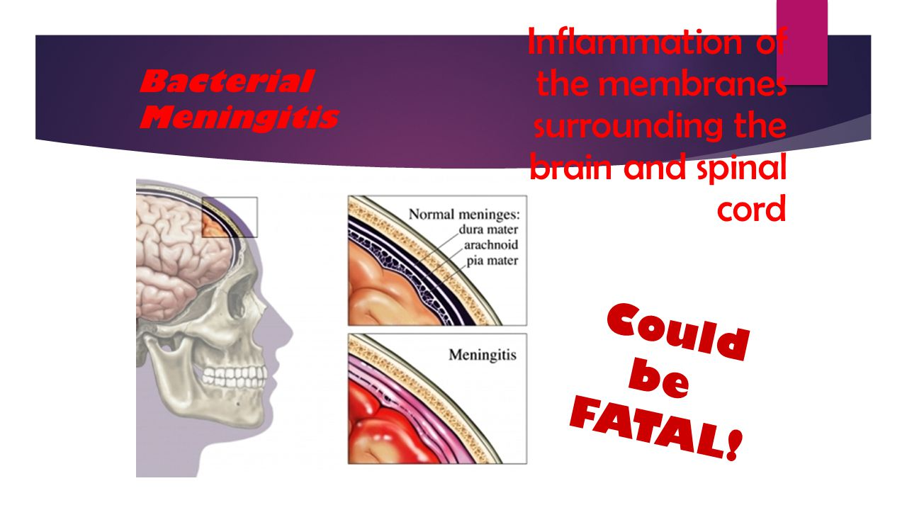 Inflammation of the membranes surrounding the brain and spinal cord