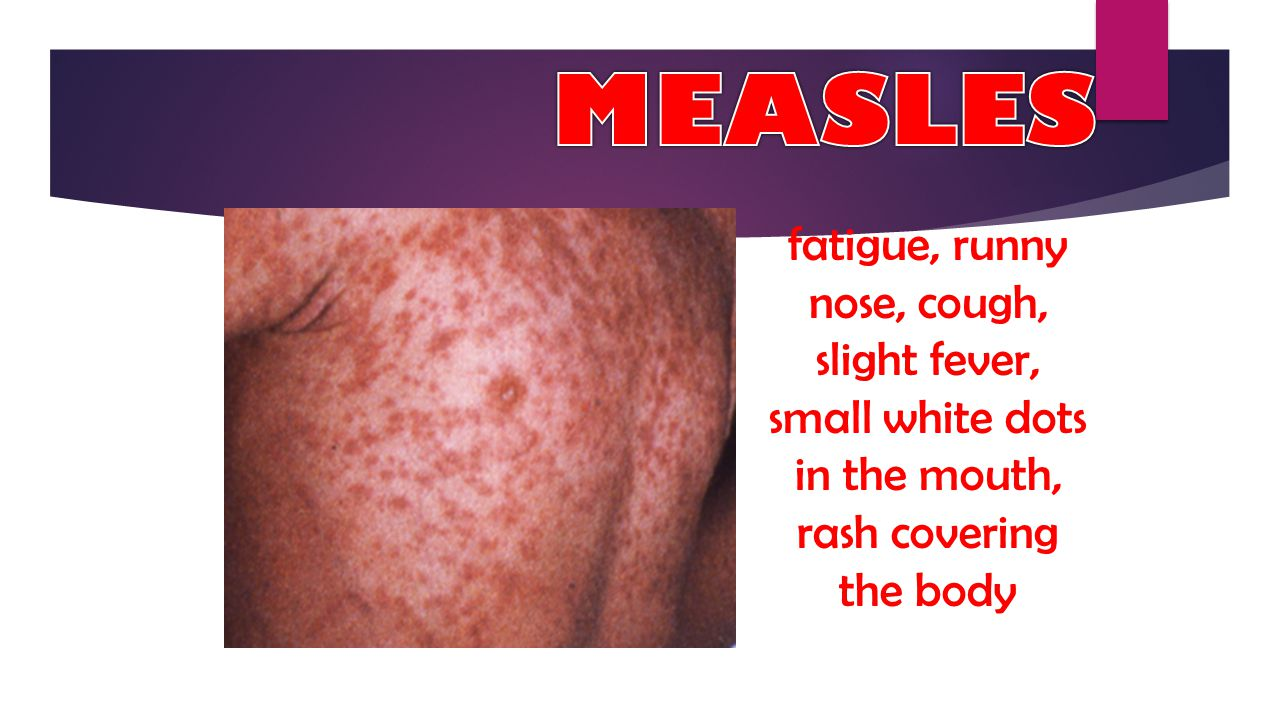 MEASLES fatigue, runny nose, cough, slight fever, small white dots in the mouth, rash covering the body.