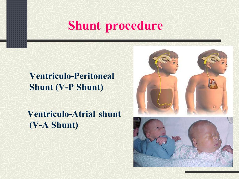 Shunt revision adult recovery