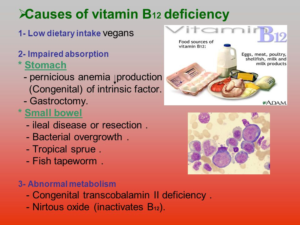 Foods Low In Vitamin B