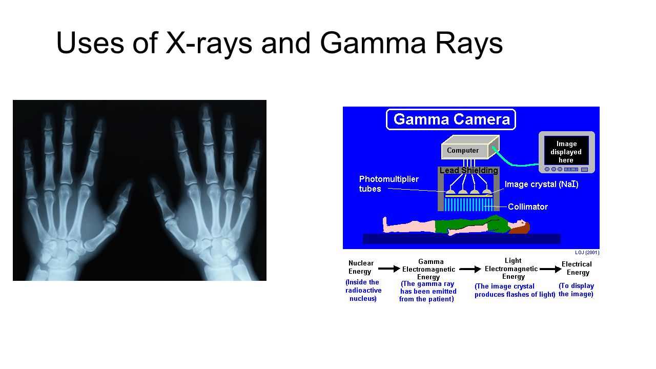 Uses of X-rays and Gamma Rays