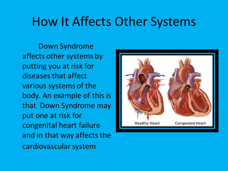 Nice Down Syndrome Anatomy Photos - Anatomy And Physiology Biology ...