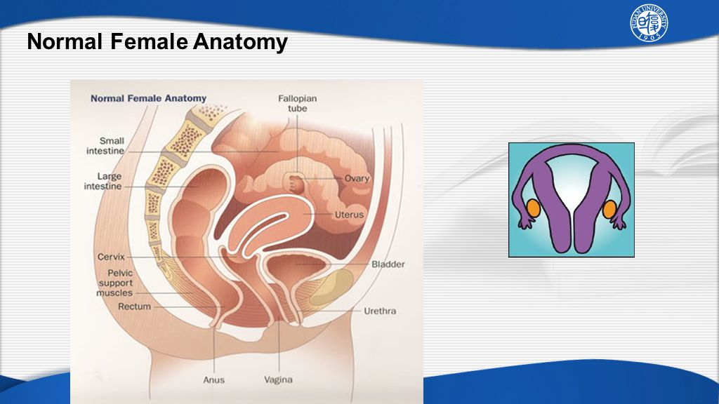 Chapter 37 Anatomic Disorders Of The Female Reproductive System